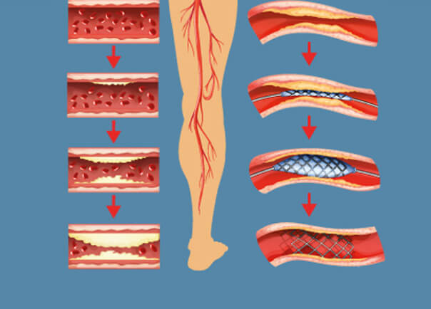 Graphical View of Leg Nerves Stock Image