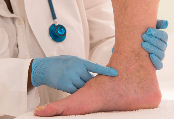 Stock Image of Doctor Testing Patients Foot