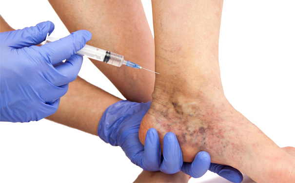 Stock Image of Doctor Injects Injection in Patients Foot