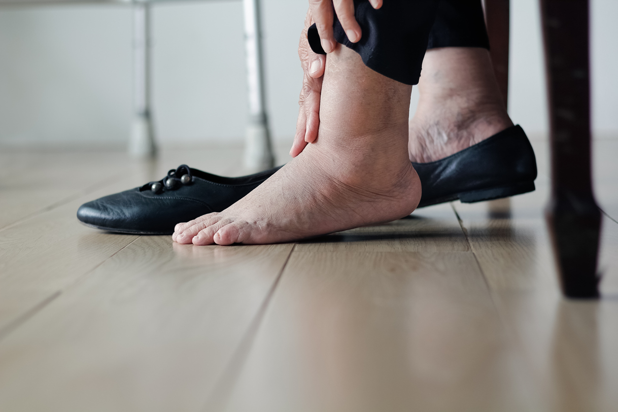 Elderly woman's swollen legs and feet in need of the best cardiologist in Los Angeles