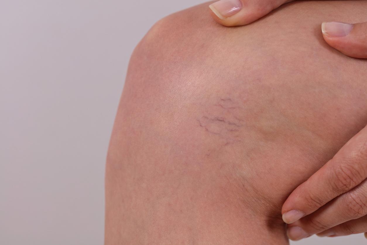 Close up of spider veins on knee. Are spider veins preventable?