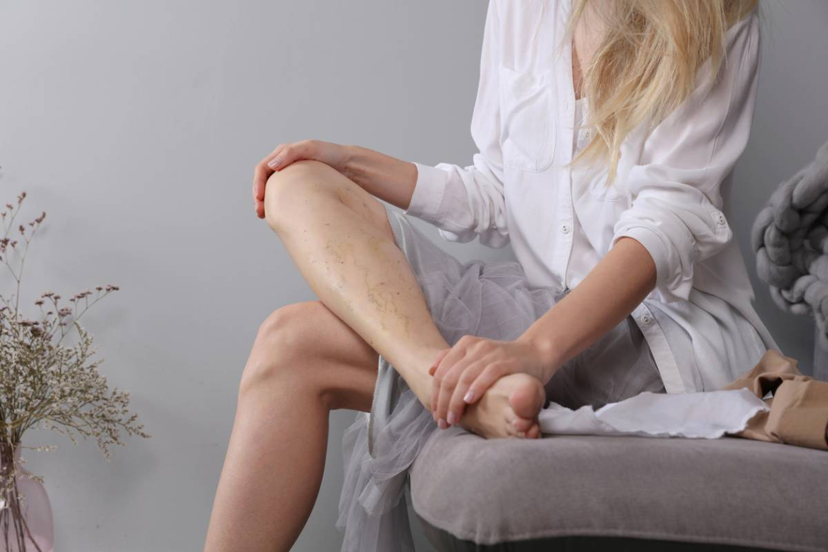 Can your leg veins cause pain.