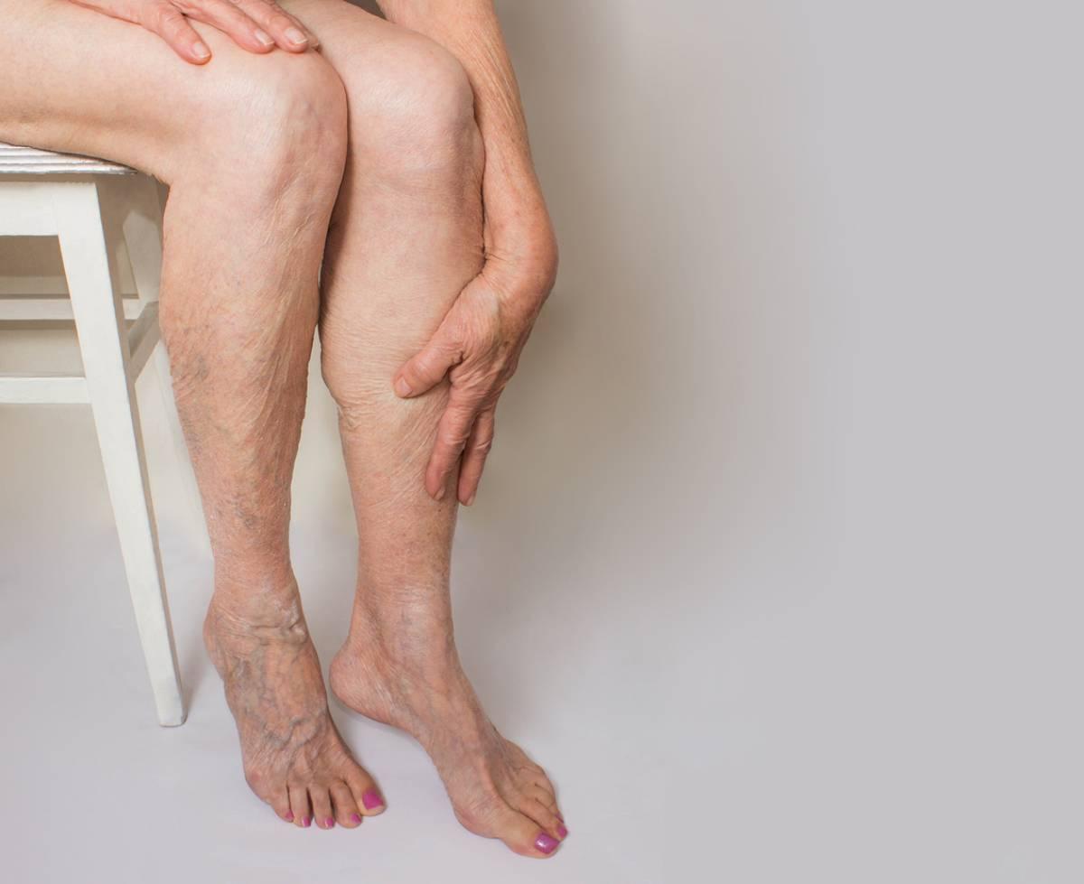 Why do veins bulge? Woman with bulging leg veins.